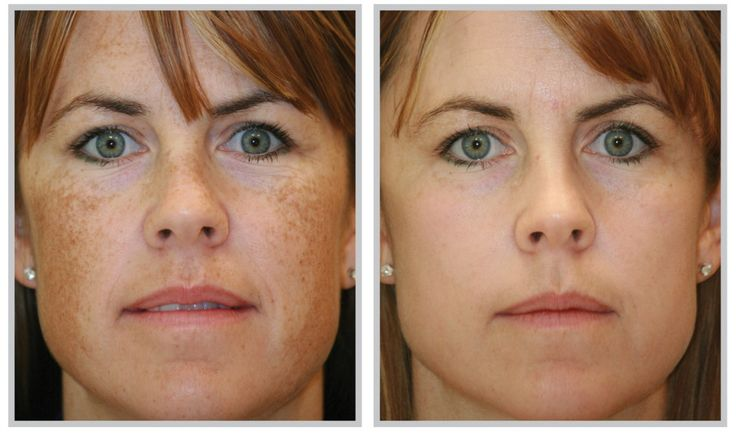 How to Treat Pigmentation Spots at Home (Melasma)