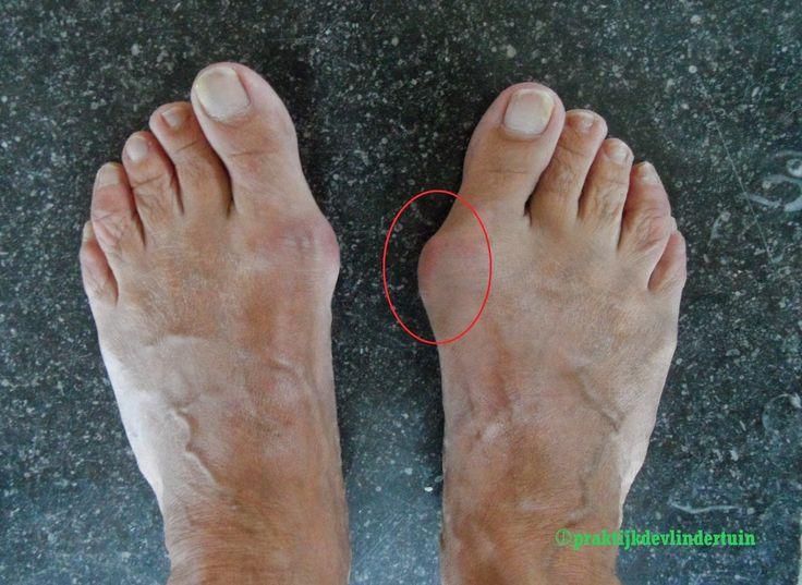 Een knobbel zichtbaar aan de zijkant van je voet Je staat