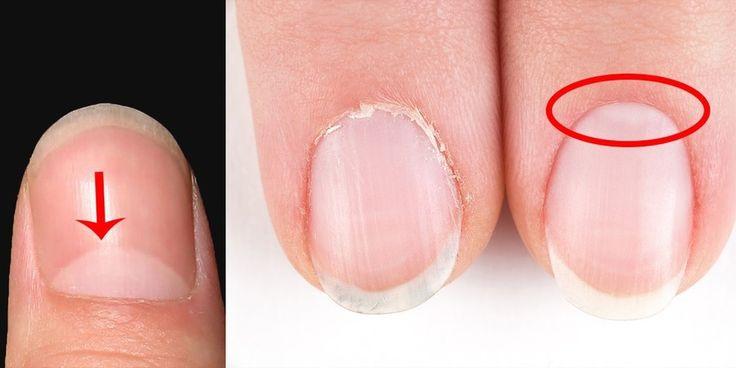 La signification de la forme de demi-lune sur vos ongles révélée