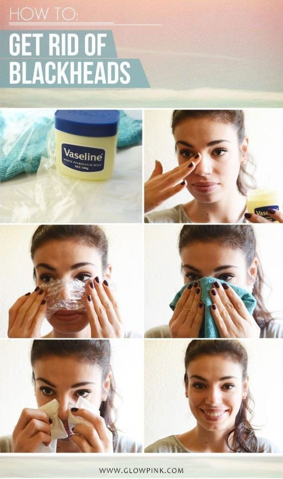 Vaseline can remove blackheads overnight and that also without any pain -