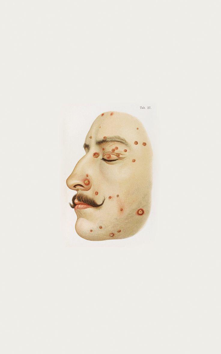 200 best MDD Pathologie images on Pinterest   Medical history ...