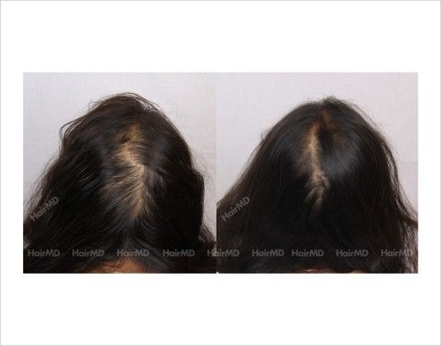 35 best female hair loss: results & before and after   hairmd