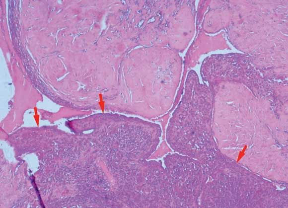 A malignant phyllodes tumour