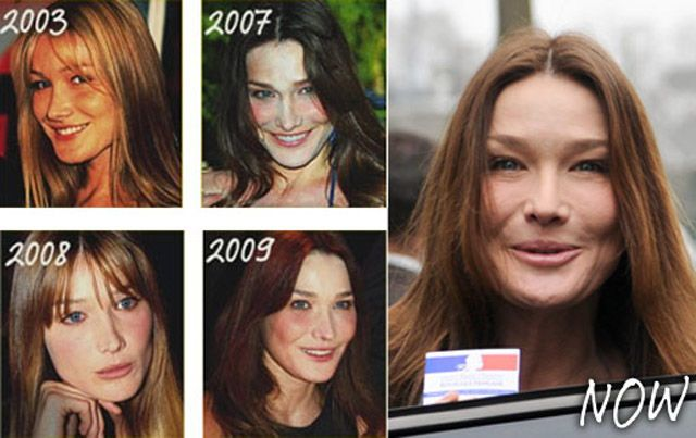 Chatter Busy: Carla Bruni Plastic Surgery