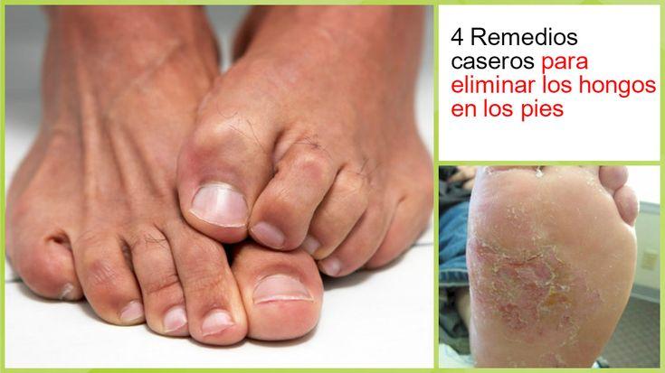 4 Remedios eficaces para eliminar los hongos de los pies