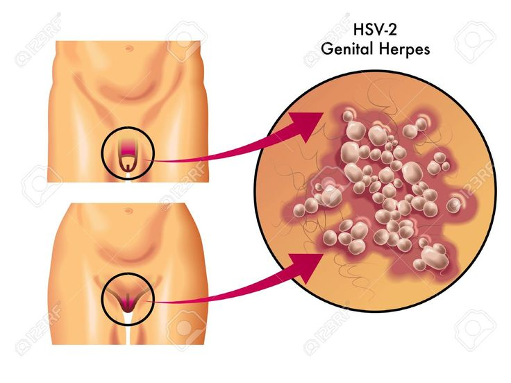 Risks of hookup someone with herpes