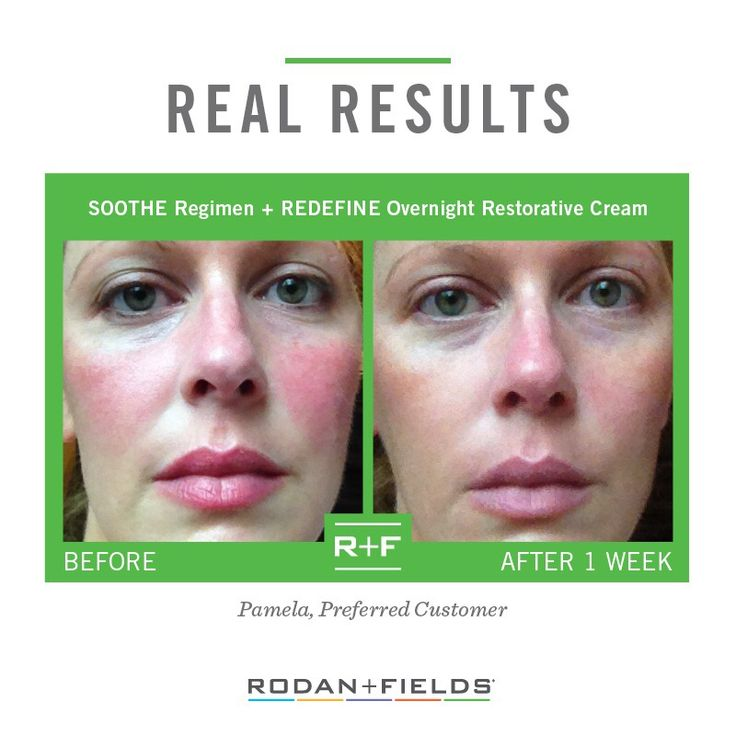 Rodan and Fields Soothe Regimen