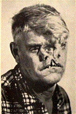 """William Durks (1913-1975)  known as """"The Two Faced Man"""".  He had a birth defect that prevented the two halves of his face from joining together during gestation. He  joined a sideshow and  would find love when he met Milly, the alligator-skinned woman.  They remained together until her death in 1968."""