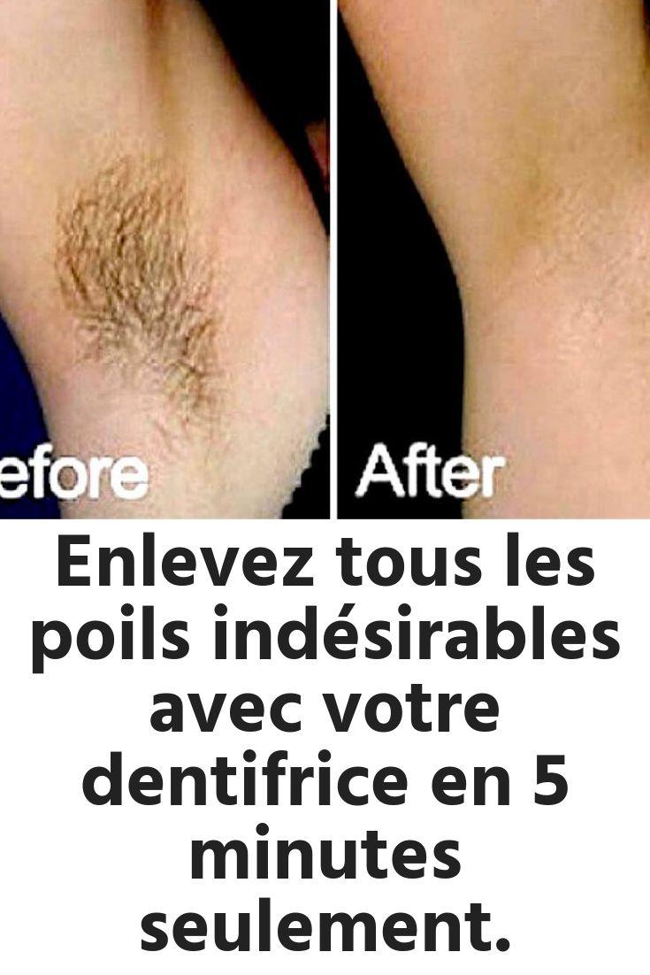 Enlevez tous les poils indésirables avec votre dentifrice en 5 minutes seulement.