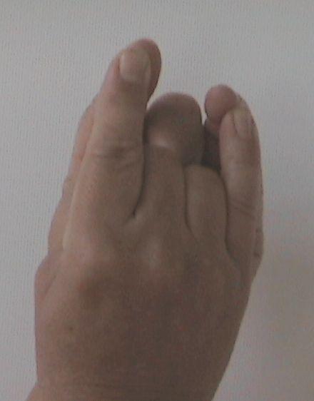 Kéztartás szívtáji szorító fájdalom esetére - Késmárki László