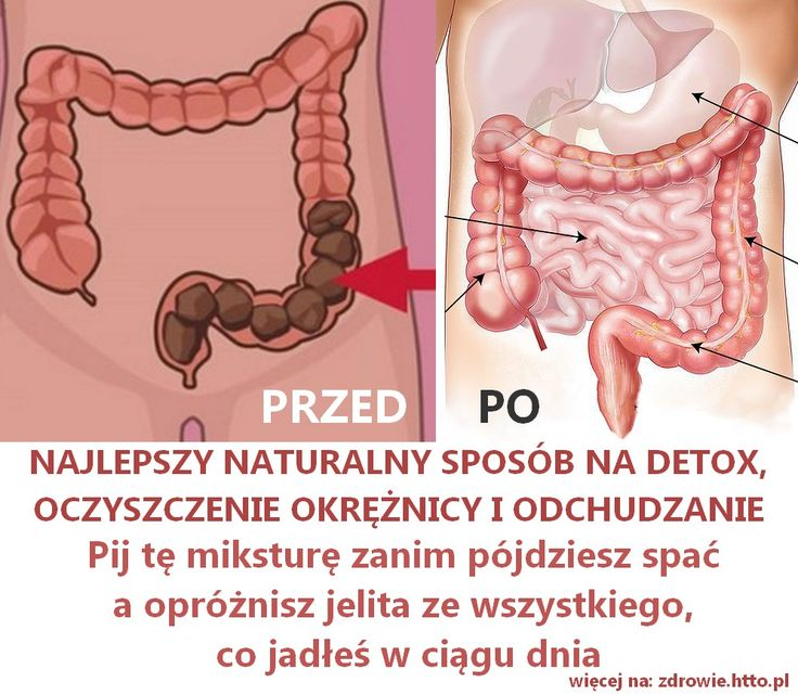 Niezwykła popularność tej mikstury wynika z jej rewelacyjnej skuteczności w oczyszczaniu jelita grubego (okrężnicy) oczyszczania organizmu z toksyn, spala
