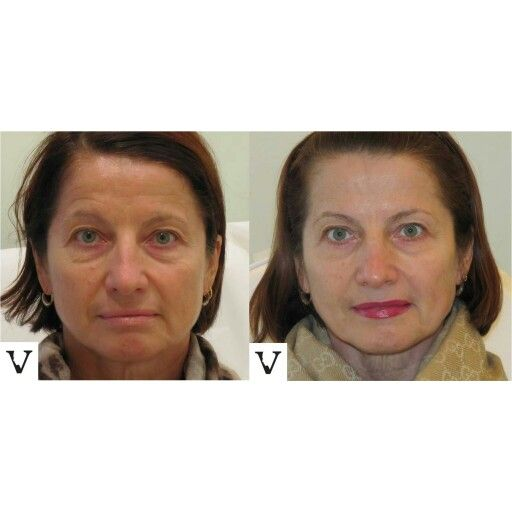 Before & after Non-surgical facelift with Sculptra #boston #facelift #sculptra #rhinoplasty #nosejob #alternative #injection #expert #newton #asymmetry #correction #reconstruction #hiv #lips #eyes #beauty #taste #youth #young #proportion #selfesteem #juvederm #belotero #merz #galderma #allergan #botox #face #slimming #visagesculpture #mashabanar #restylane #radiesse #botox #sculptra #chin #augmentation #jaw #reduction #face #facelift