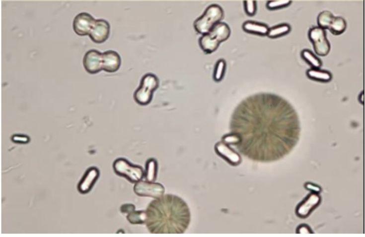 Urinalysis - Microscopic (Renal) Flashcards | Memorang ...