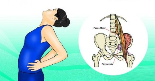 The Hidden Muscle Causing Your Sciatica Pain and 2 Easy Stretches for INSTANT Relief