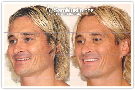perfect smile veneers на русском
