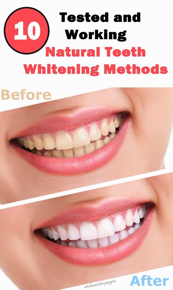 152 best teeth whitening images on pinterest white teeth teeth
