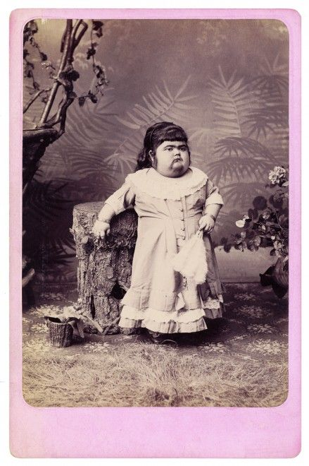 freaks phenomene foire 04 439x660 Des phénomènes de foire dans les années 1870  photographie bonus
