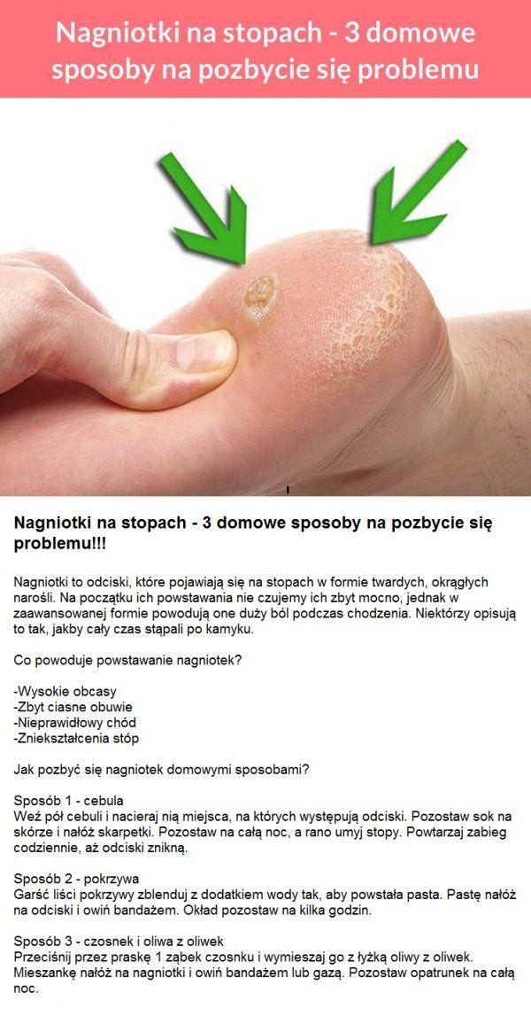Nagniotki Na Stopach 3 Domowe Sposoby Na Pozbycie Sie Problemu Skin Care Health Body