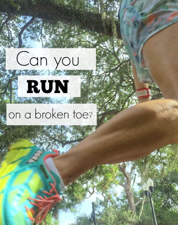 Can you run on a broken toe? Find out what to do for a toe injury and when not to run or workout!