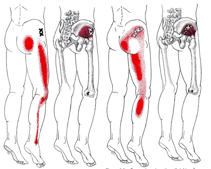 trigger points glutmin