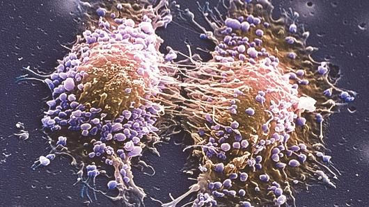 A trial has shown that a non-surgical method of treatment for low-risk prostate cancer can kill cancer cells and preserve healthy tissue.
