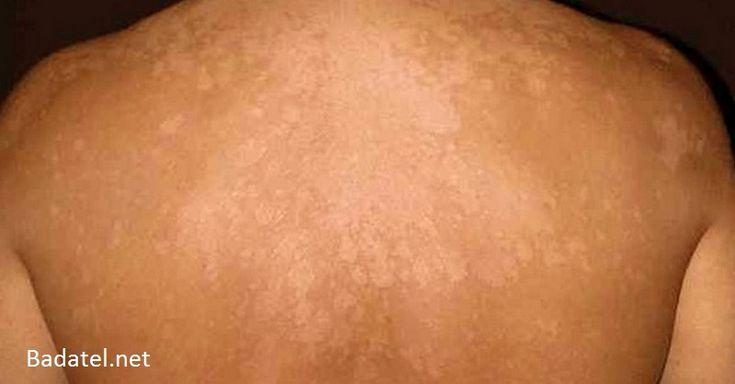 Na rozšírenie kožných mykóz stačí pár horúcich letných dní, no zbaviť sa ich často trvá i celé mesiace. Nie však s týmito skvelými kúrami.