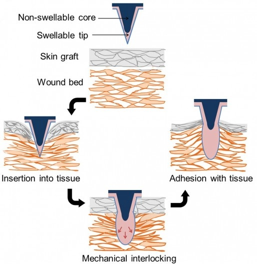 The microneedle patches reportedly produce over three times the adhesion strength of sutur...