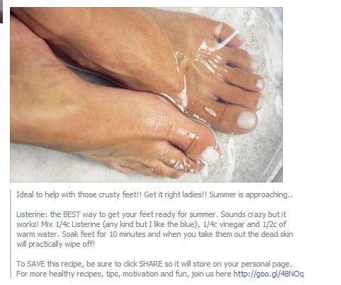 MEDISCH - voeten dode huid verwijderen