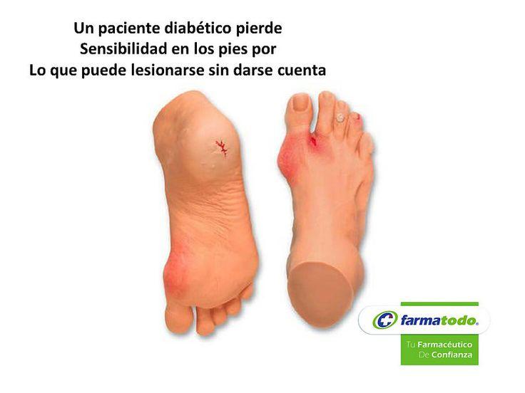 FARMACIA ¿Cómo se inicia una lesión por pie diabético? GRUPO FARMATODO El daño a los nervios que produce la diabetes hace perder sensibilidad. Puede no sentir una cortadura, ampolla o llaga. Estas lesiones causan úlceras e infecciones. En casos graves se llega a una amputación. El daño en los vasos sanguíneos, significa que los pies no reciben suficiente sangre y oxígeno. Y dificulta que el pie pueda curarse si tiene una llaga o una infección. www.farmatodo.com.mx
