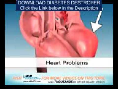 How To Treat Diabetes With Moringa - Diabetes How To Lower - WATCH VIDEO HERE -> http://bestdiabetes.solutions/how-to-treat-diabetes-with-moringa-diabetes-how-to-lower/      Why diabetes has NOTHING to do with blood sugar   How To Treat Diabetes Mellitus Type 2 – Diabetes How Often Do You Urinate If you're planning to go a no-standard course for the diabetes treatment method, continue to be under the supervision of the medical professional. Make sure...  Why di