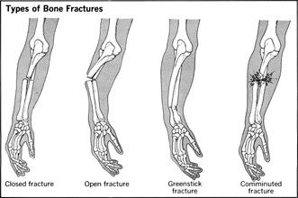 At last research has identified that a subset of male athletes may suffer from undiagnosed low bone density which may predispose them to developing stress fractures. http://disuppo.weebly.com/25252208552133823458/diet-and-stress-fractures-in-male-athletes-has-the-research-finally-caught-up