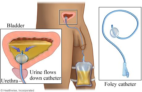 Urinary Catheterization is the introduction of a catheter through the urethra into the bladder for the purpose of withdrawing urine.