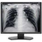 Image of NEC MD211G3 Grayscale Medical Diagnostic Display