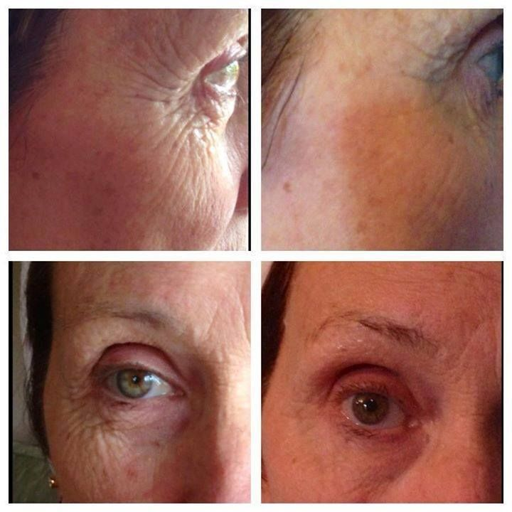 Awesome results of what the #Luminesce products can achieve in short time.... #luminesce #generationyoung #redefiningyouth #jeunesse #jeunesseglobal #antiaging #stemcells #skincare #youthenhancing