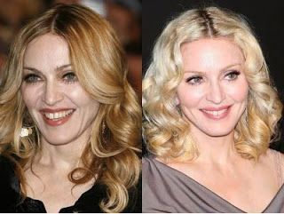 Madonna – Botox, Fillers, Laser Skin Resurfacing, Laser Skin Tightening and IPL Photofacial (scheduled via http://www.tailwindapp.com?utm_source=pinterest&utm_medium=twpin&utm_content=post26363272&utm_campaign=scheduler_attribution)