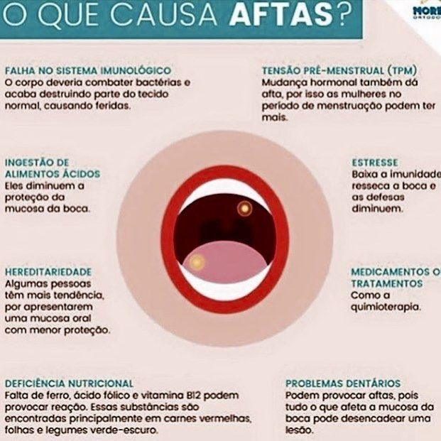 Aftas....um problema com várias causas. Conheça quais são e se cuide! #cromaortodontia #saudebucal #ortodontia #orthodontics #dentistry #odontologia by dra.magdasarno Our General Dentistry Page: http://www.myimagedental.com/services/general-dentistry/ Google My Business: https://plus.google.com/ImageDentalStockton/about Our Yelp Page: http://www.yelp.com/biz/image-dental-stockton-3 Our Facebook Page: https://www.facebook.com/MyImageDental Image Dental 3453 Brookside Road Suite A Stockton CA…