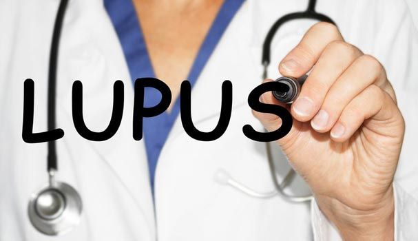 Lupus – Causes, Symptoms, Diagnosis