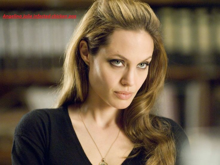Angelina Jolie infected chicken pox