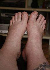 Follow these tips to avoid swollen feet during pregnancy!