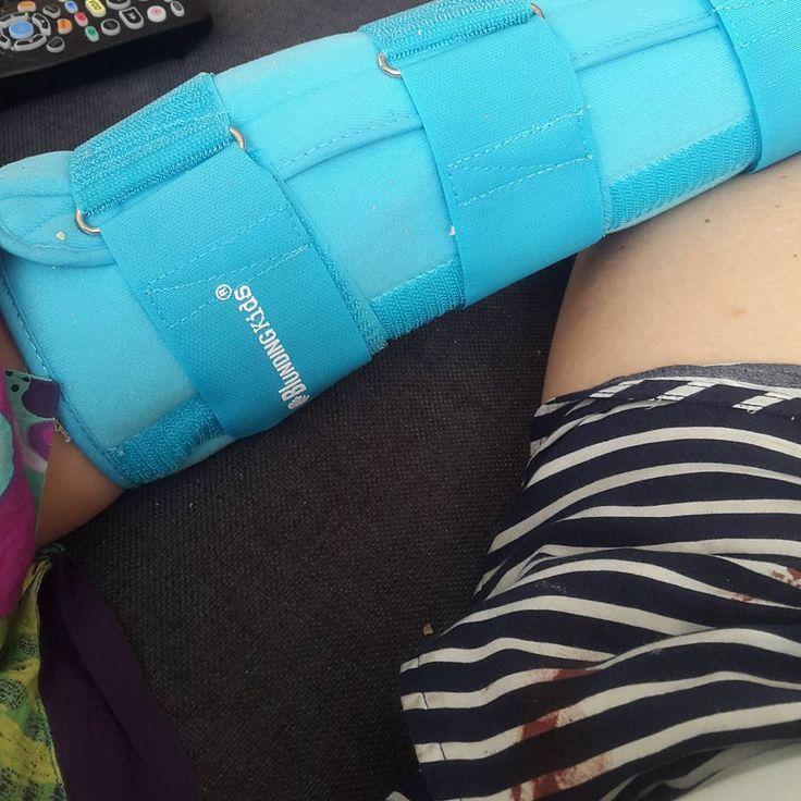 Pequeños juegos y pequeñas lesiones. Maternidad real. Cosas que pasan
