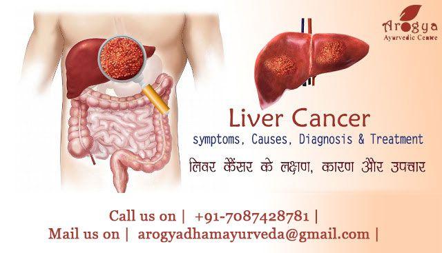 Liver Cancer Ayurvedic Treatment , Ayurvedic Treatment for Liver Cancer, Ayurvedic Liver Cancer, Ayurvedic Medicine For Liver Cancer, Ayurvedic Prespective Of Liver, Ayurvedic Treatment For Liver Failure, Call us on +91-7087428781