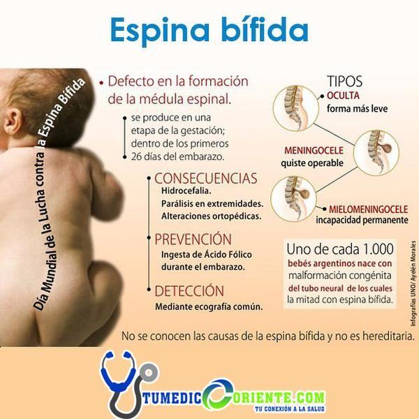 El riesgo de la #EspinaBífida se puede reducir hasta en un 70% #AGENDATUCITA y enterate de mas http://tumedicooriente.com.ve
