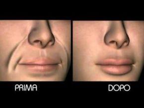 le rughe della pelle intorno alle labbra