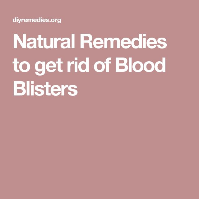 Natural Remedies to get rid of Blood Blisters