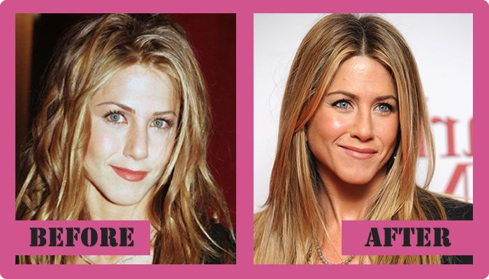 Jennifer Aniston Plastic Surgery Before And After Jennifer Aniston Plastic Surgery #JenniferAnistonplasticsurgery #JenniferAniston #gossipmagazines