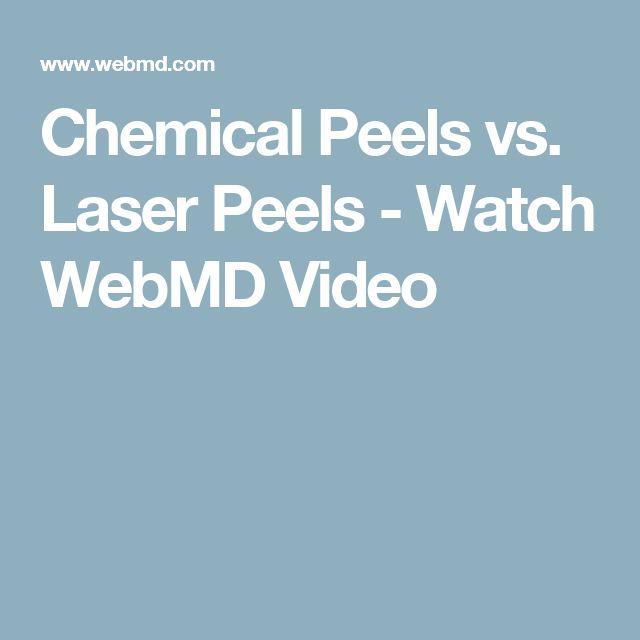 Chemical Peels vs. Laser Peels - Watch WebMD Video
