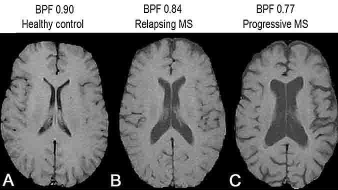 MRI Brain With Contrast Multiple Sclerosis | Mri Scan Images