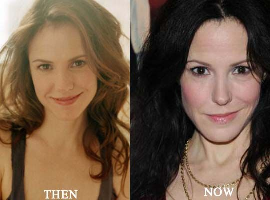 Mary Louise Parker Plastic Surgery Photo Mary Louise Parker Plastic Surgery