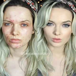 18 different makeup artists show how to cover up acne Em Ford aka My Pale Skin | 18 Insane Acne Transformations That Prove The Power Of Makeup