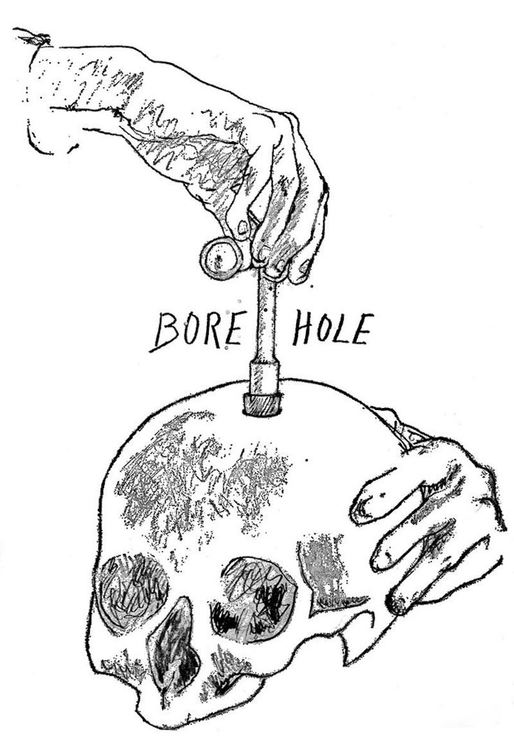 I drilled a hole in my own skull to stay high forever